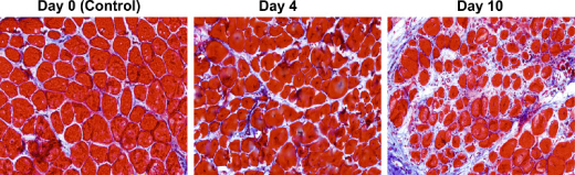 Out-of-Step Muscle Cells Launch Fibrosis Development In Duchenne Muscular Dystrophy Patients
