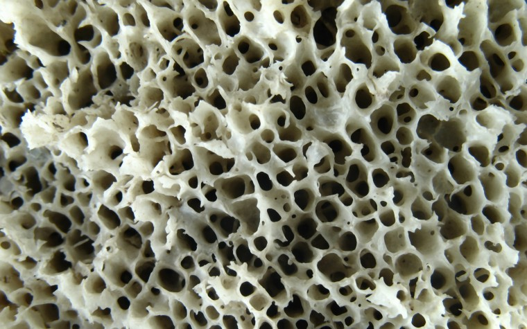 bone structure in DMD