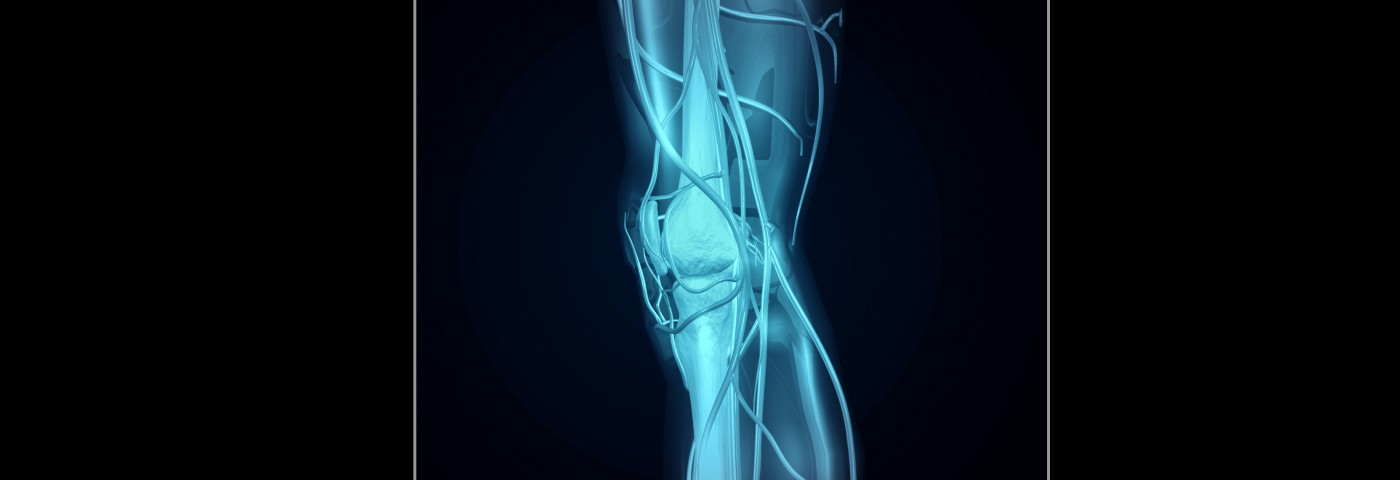 In Diagnosing Muscular Dystrophies, Review Finds MRI Analysis to Be Best Overall Approach