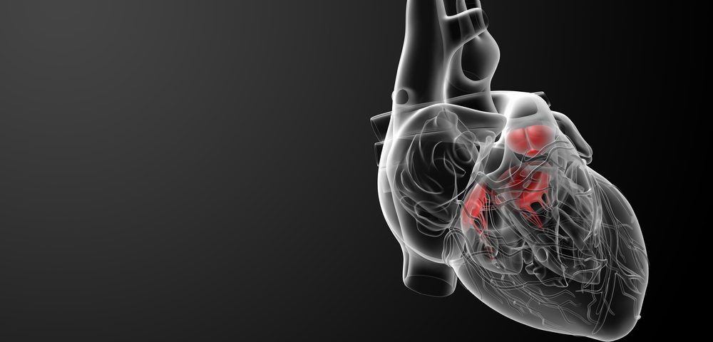 Defective RNA Processing Linked to Cardiac Problems Seen in Myotonic Dystrophy Patients