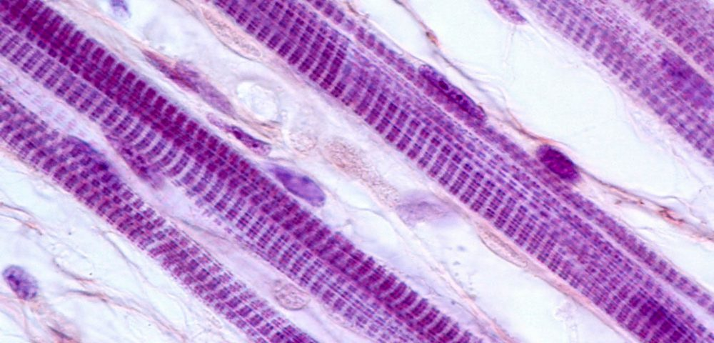 Gene Controlling Muscle Regeneration in MD-like Diseases Identified in Study